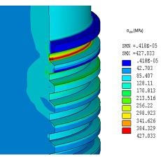simulation numérique calculs mécaniques du comportement des matériaux